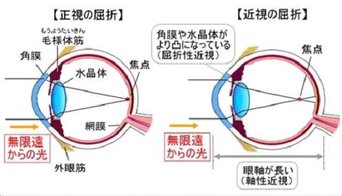 http://www.hatae-ganka.jp/images/material/maiopinn.jpg
